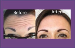 botox leeds, botox wakefield, botox and fillers, botox yorkshire, wrinkles, anti wrinkle injections