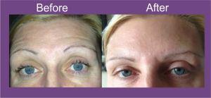 Botox leeds, botox wakefield, anti wrinkle injections