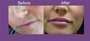 dermal fillers Leeds, lip fillers leeds