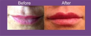 dermal fillers leeds, dermal fillers wakefield, dermal fillers yorkshire