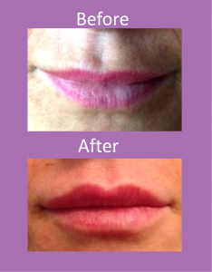 lip fillers, dermal fillers, Leeds