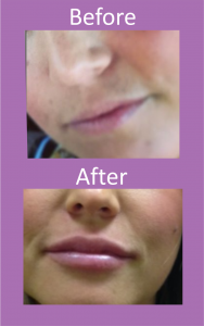 dermal fillers, lip fillers